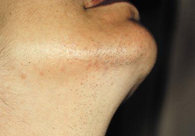 Efter laserbehandling hår