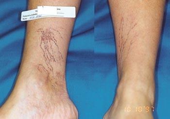 blodkärl på benen